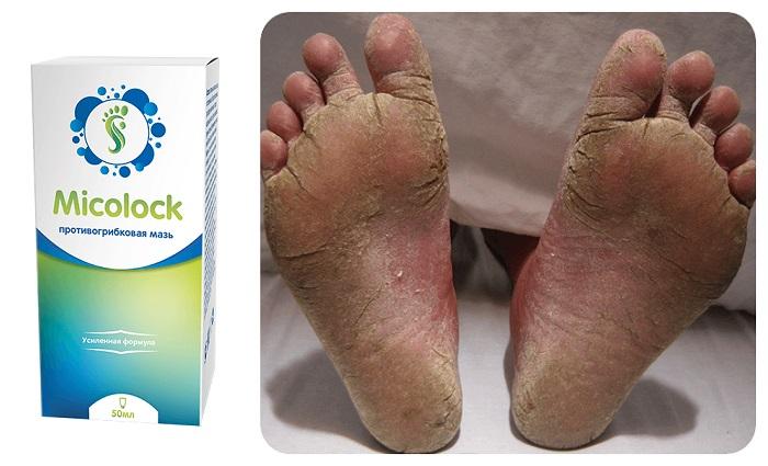 Micolock от грибка ногтей и ног: работает без побочных эффектов и противопоказаний в любом возрасте!